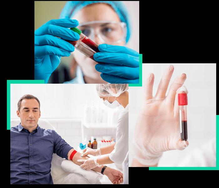 Recoltare probe sange Brasov