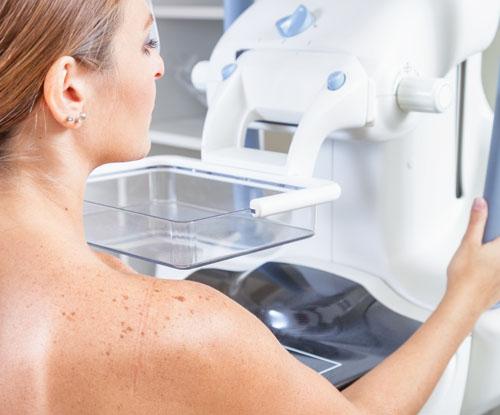 Mamografie Brasov